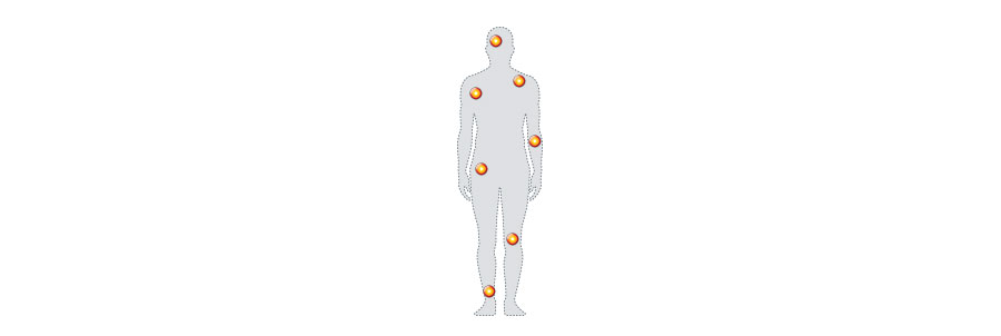 Nurofen targets areas of muscular pain around the body
